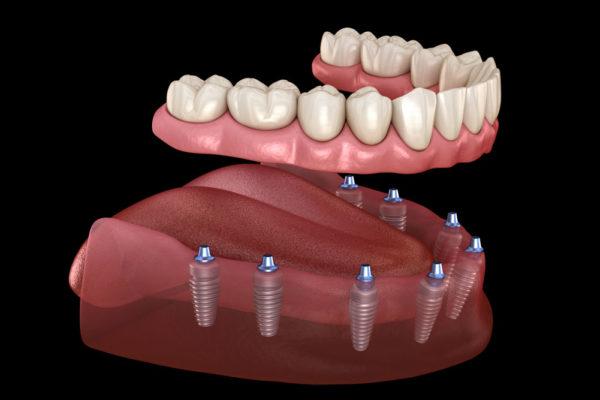 Denti in un giorno